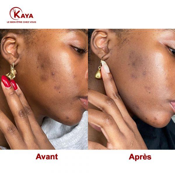Alpha arbutin 2% + HA – Sérum Anti Tache et Hyperpigmentation avant après